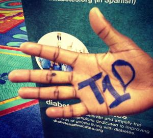 t1d hand